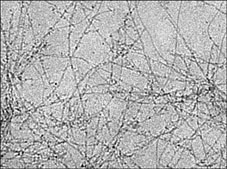 The fibril-like aggregates in microscope.